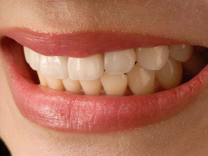 大人の歯科矯正をホーチミンで始める【ありが歯科】