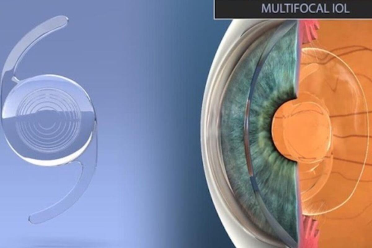視力矯正治療「プレレックス」|メガネ・コンタクトが不要に