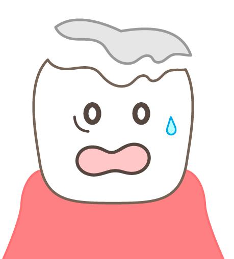 歯が抜けた!! そんな時にホーチミンで頼れるのは「ありが歯科」