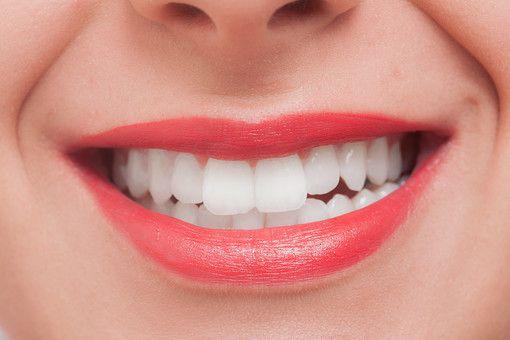 ホーチミンでホワイトニングがしたい!! そんな方にはありが歯科がオススメ