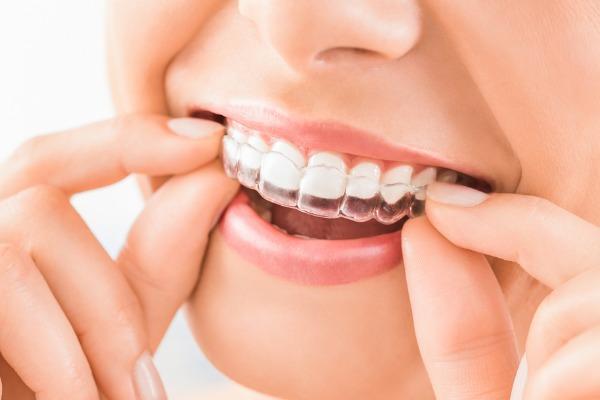 【4月〜6月限定】歯科矯正の相談料70万ドンが無料に!